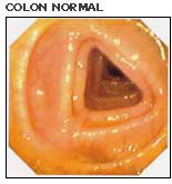 COLON NORMAL